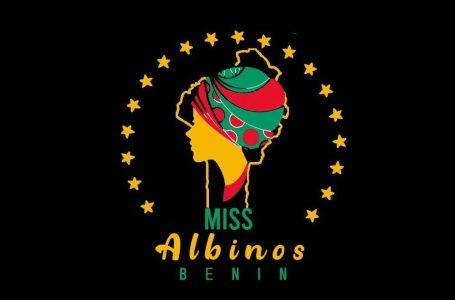 """Bénin/ """"Miss Albinos"""": Appel à candidatures au Concours National de beauté"""