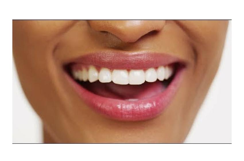 Avoir des dents blanches