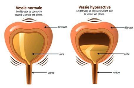 Une vessie hyperactive, de quoi s'agit-il ?